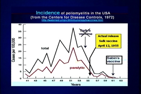 Poliomyelitis (Polio) in the USA